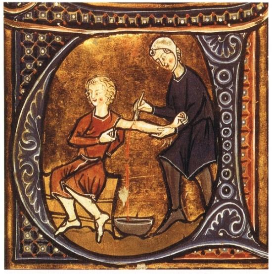 MedievalBloodletting